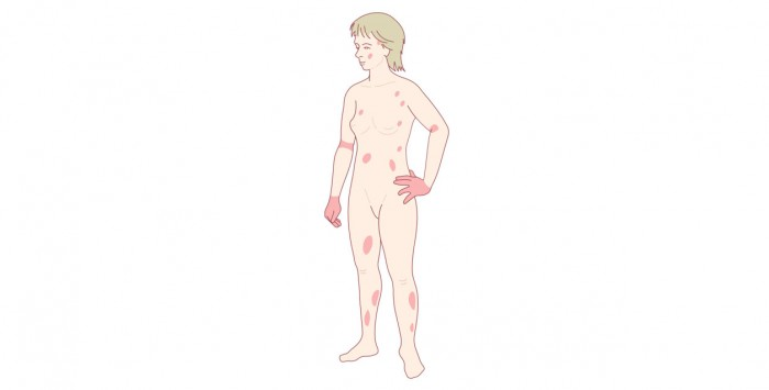 Adult eczema rash distribution