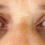 Do allergies cause dark circles under your eyes?