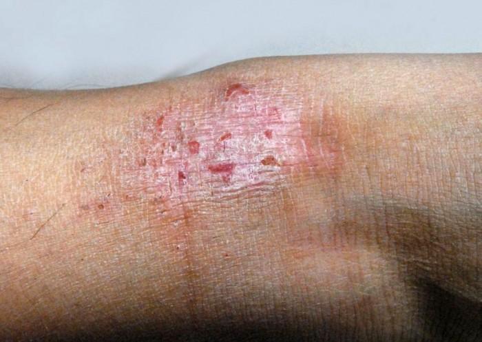 Mild eczema