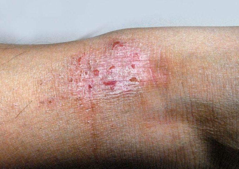 Stasis dermatitis and ulcers: MedlinePlus Medical Encyclopedia