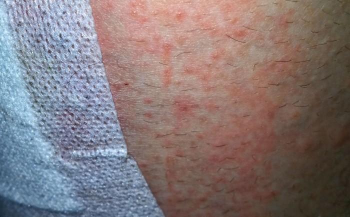 Plaster adhesive allergy